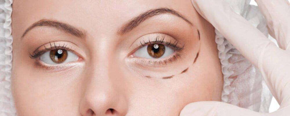 bursa göz altı ışık dolgusu ümit çakır kliniğinde medikal estetik